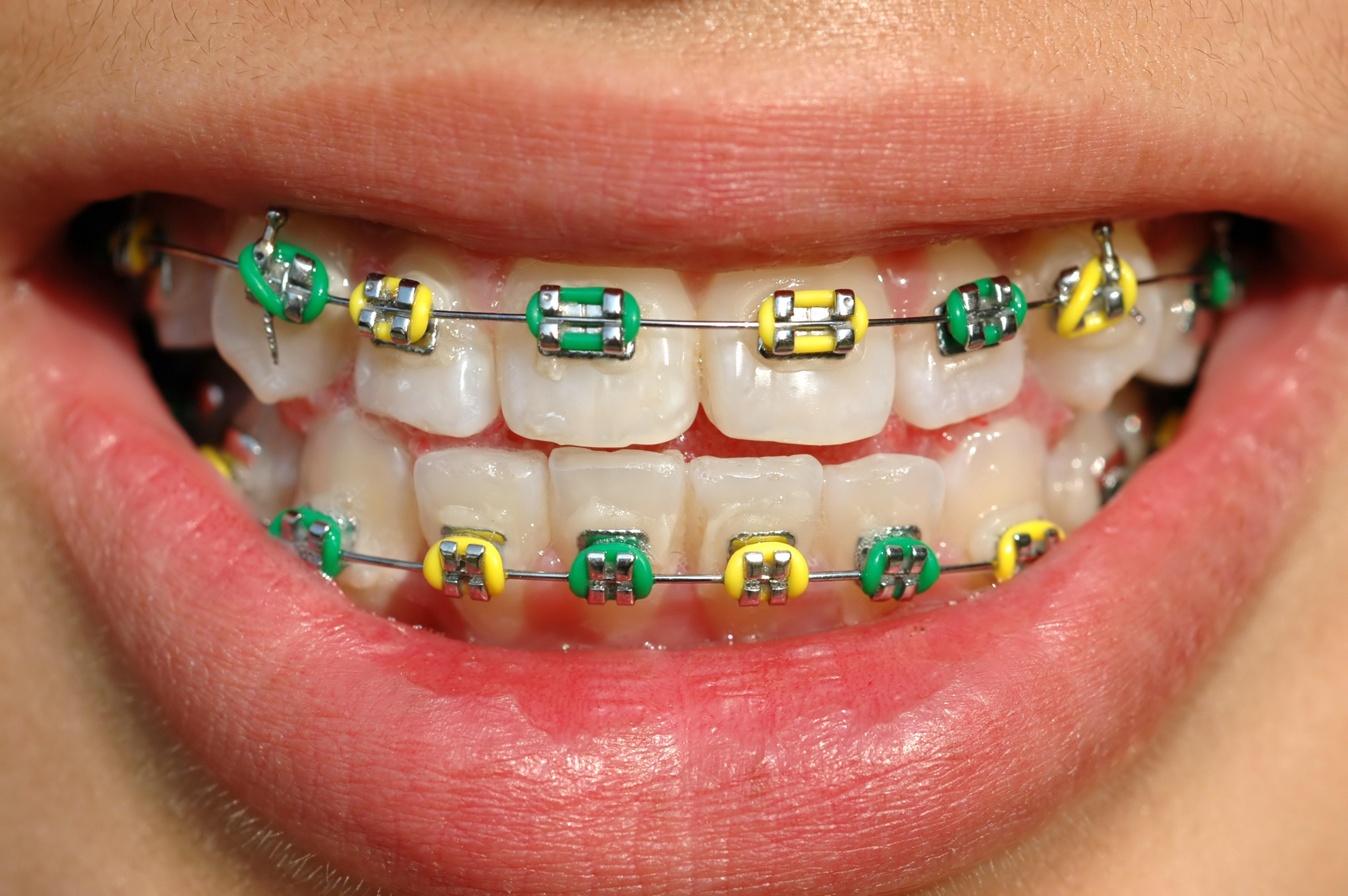 44 melhores imagens de Ortodontia | Dental braces ...