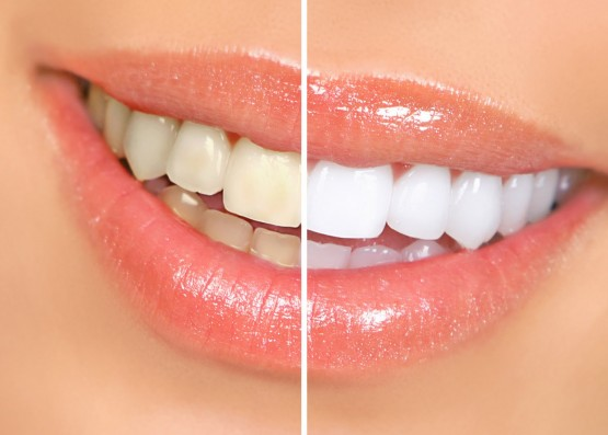 Clareamento-Dental_1
