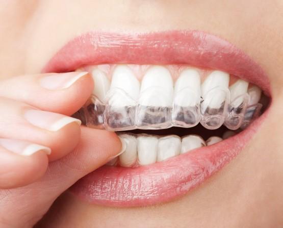 aparelho-transparente-dentes